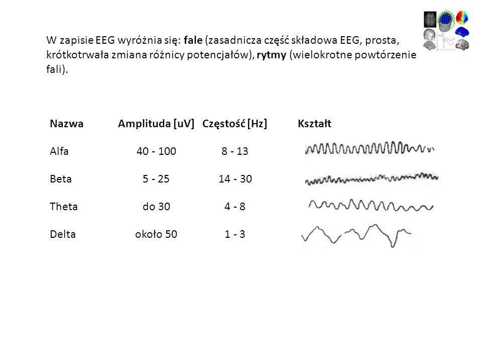 Amplituda [uV] Częstość [Hz] Kształt